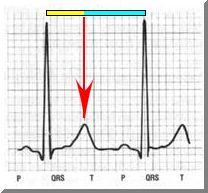 Human Heartbeat and Fibonacci Patterns - The Golden Ratio ...