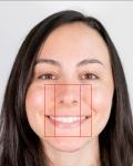 julia-calderone-smile-nose-width