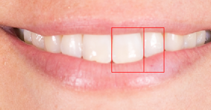 julia-calderone-teeth-width